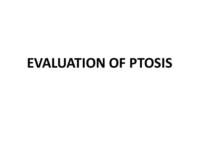 Ptosis • U/L or B/L • Complete /incomplete • Total unilateral ptosis – complete third nerve palsy.  • Mild to moderate uni...