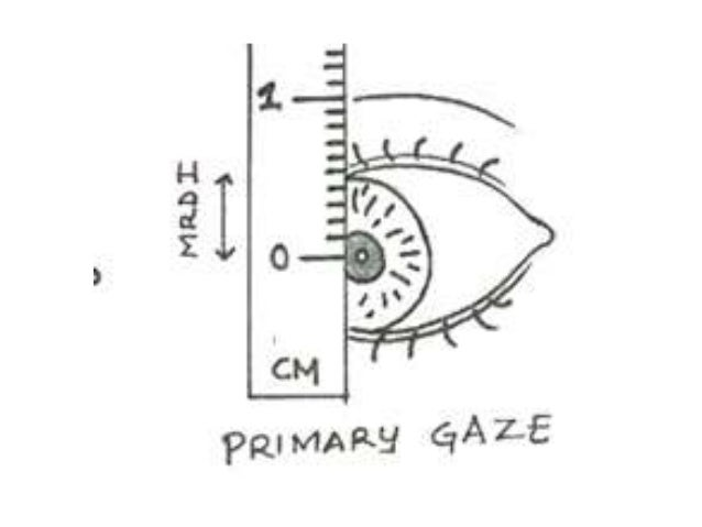 Upper lid excursion- burke's ,method •  Reflects levator function  •  Normal (15 mm or more)  •  Good (8 mm or more)  •  F...