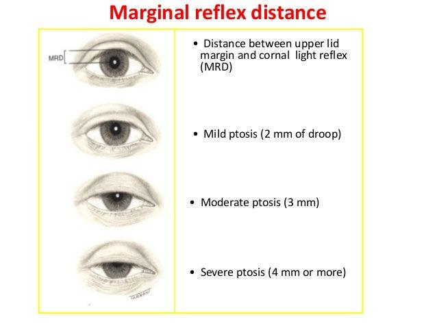 Upper lid crease  Pretarsal show fold  crease  •  • •  •  Distance between lid margin and lid crease in down-gaze Normals ...