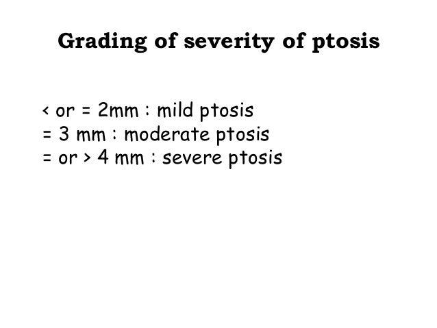 Surgical management Mild ptosis  Phenylephrine +ve  Phenylephrine - ve  Blepharoplasty  mullerectomy  Fasanella servat  Le...