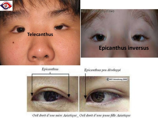 Blepharophimosis syndrome •  Rare congenital disorder  •  Dominant inheritance  • • • •  • •  Moderate to severe symmetric...