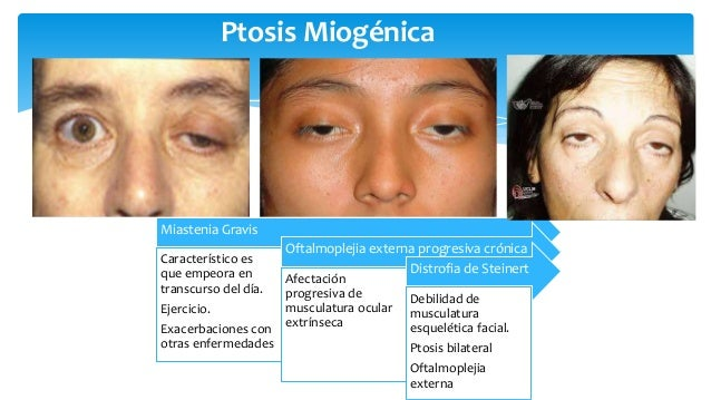 oftalmoplejia externa progresiva pdf