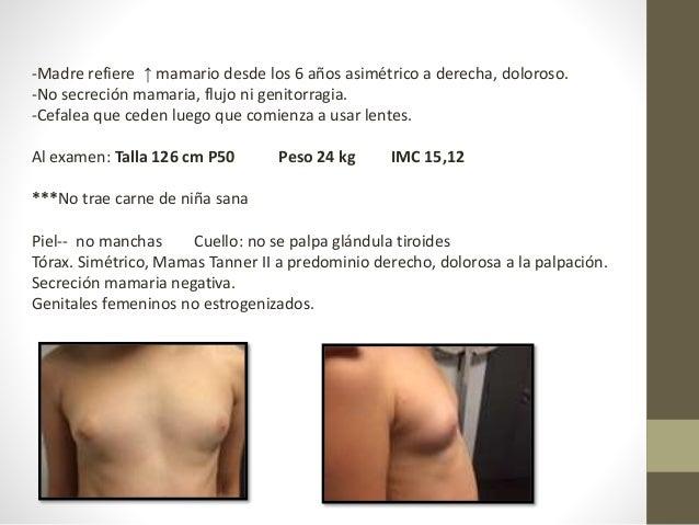 -Madre refiere ↑ mamario desde los 6 años asimétrico a derecha, doloroso. -No secreción mamaria, flujo ni genitorragia. -C...