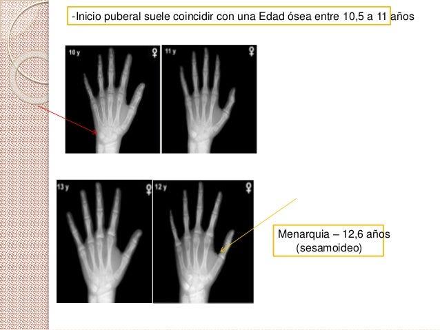  Proporciones corporales -Crecimiento de MMII mas rápido que la vertebras: Relación SS/SI<1 -Genitales internos: .Ovarios...