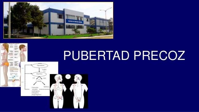 PUBERTAD PRECOZ