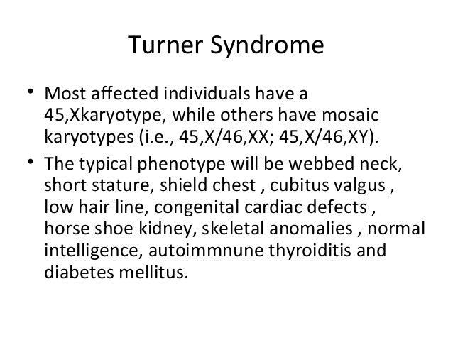 turner syndrome essay