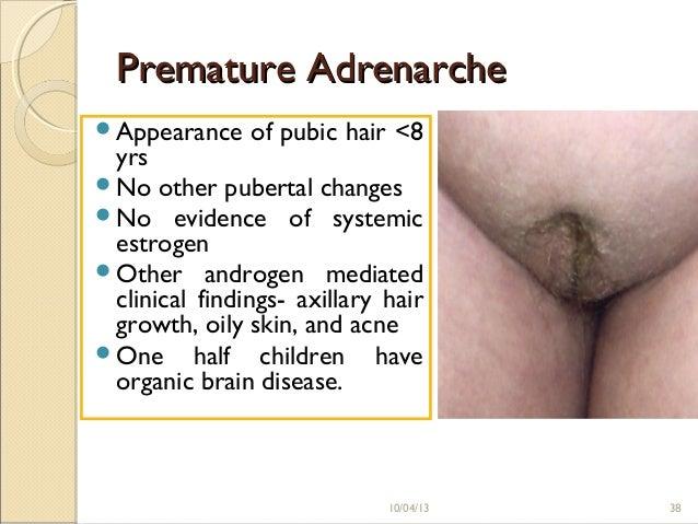 Phil hartman anal retentive snl