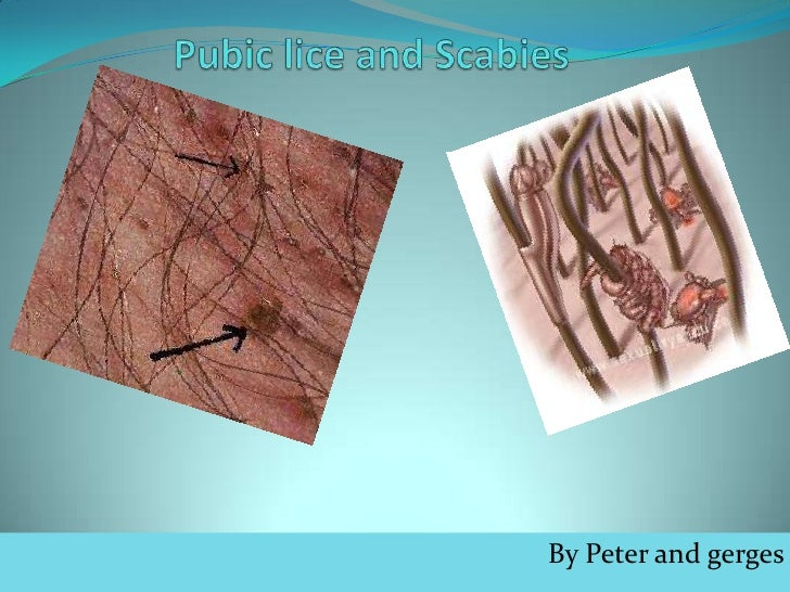 Pubic lice and Scabies <br />By Peter and gerges<br />
