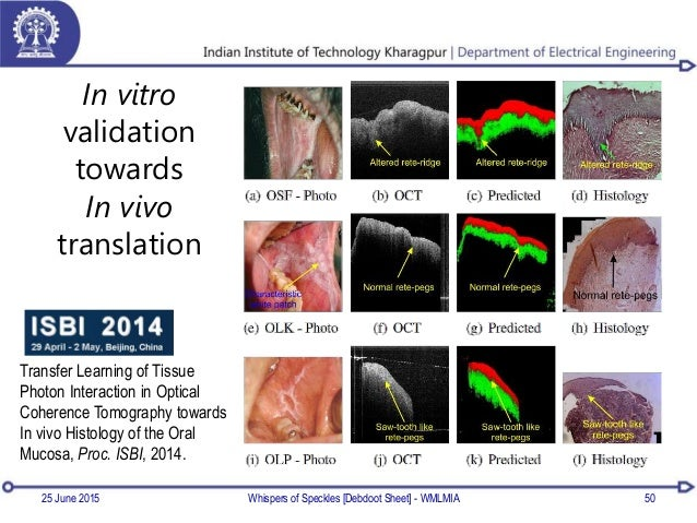 In vitro validation towards In vivo translation 25 June 2015 Whispers of Speckles [Debdoot Sheet] - WMLMIA 50 Transfer Lea...