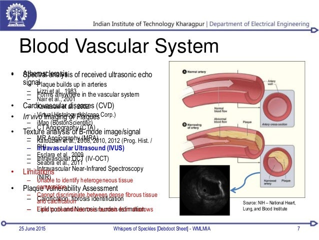 • Atherosclerosis – Plaque builds up in arteries – Forms anywhere in the vascular system • Cardiovascular diseases (CVD) •...