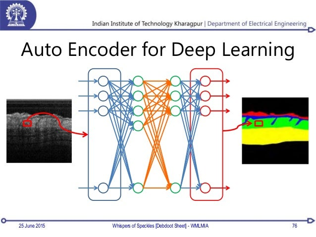 Auto Encoder for Deep Learning Whispers of Speckles [Debdoot Sheet] - WMLMIA 7625 June 2015