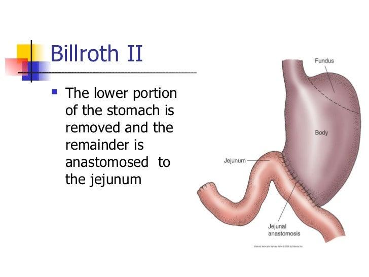 Peptic Ulcer Disease