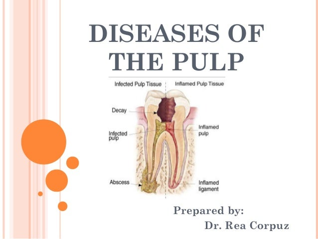 DISEASES OF THE PULP     Prepared by:          Dr. Rea Corpuz