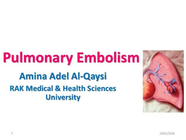 Pulmonary Embolism Amina Adel Al-Qaysi RAK Medical & Health Sciences University 20/01/20161