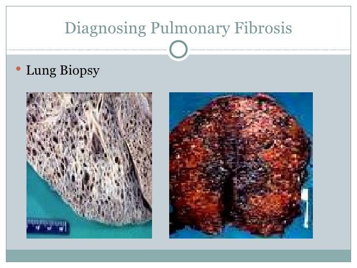Pulmonary fibrosis presentation