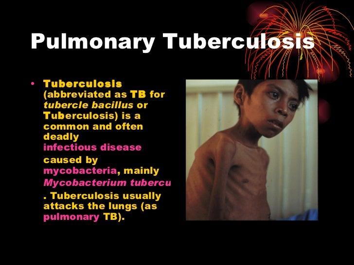 Pulmonary Tuberculosis <ul><li>Tuberculosis  (abbreviated as  TB  for  tubercle bacillus  or  T u b erculosis) is a common...