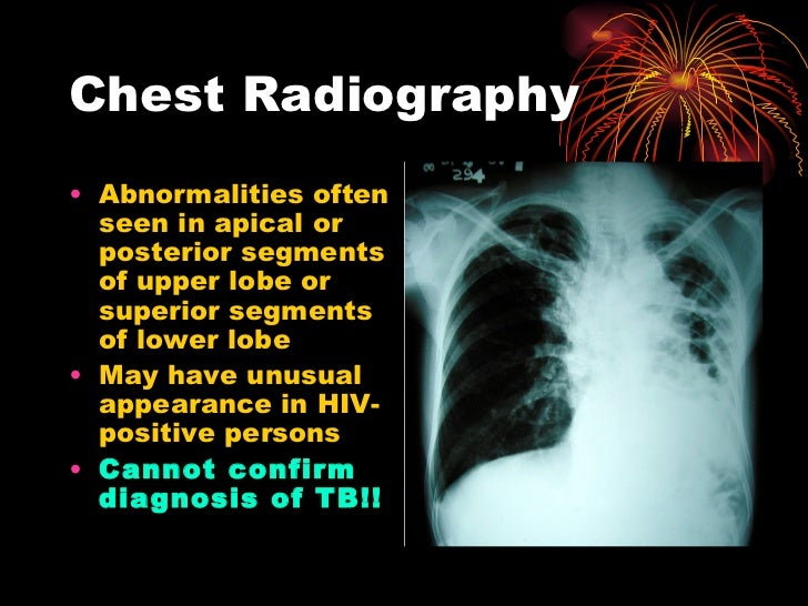 Chest Radiography <ul><li>Abnormalities often seen in apical  or posterior  segments of upper  l obe or superior segments ...