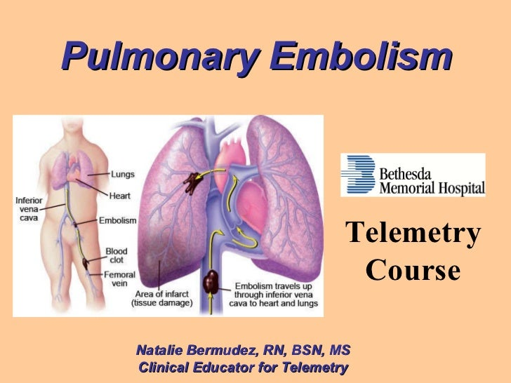 Pulmonary Embolism Natalie Bermudez, RN, BSN, MS Clinical Educator for Telemetry Telemetry Course