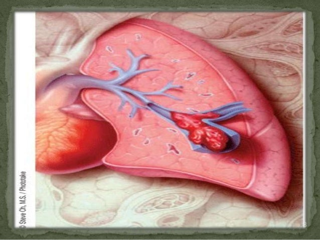Pulmonary embolism@ghanem@.2013