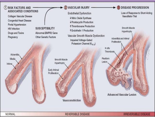 PATHOLOGY OF PHGroup 2 - PH due to left heart disease: Characterized by enlarged and thickened pulmonary   veins, pulmona...