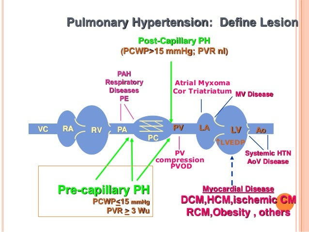 pulmonal hypertension