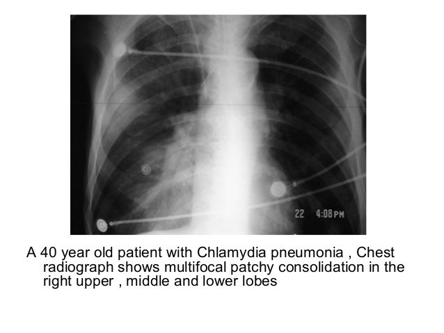 Diagnostic Imaging of Pulmonary infections
