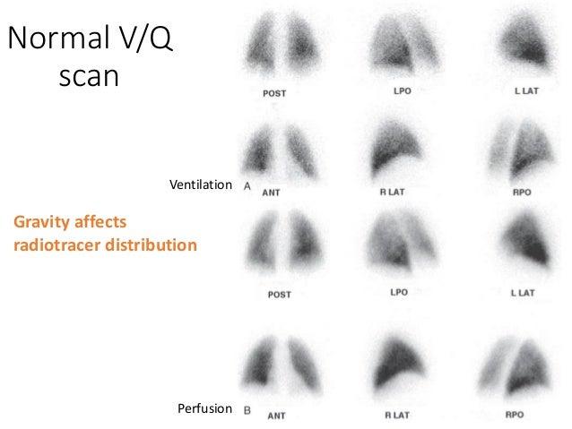 V Q Scan