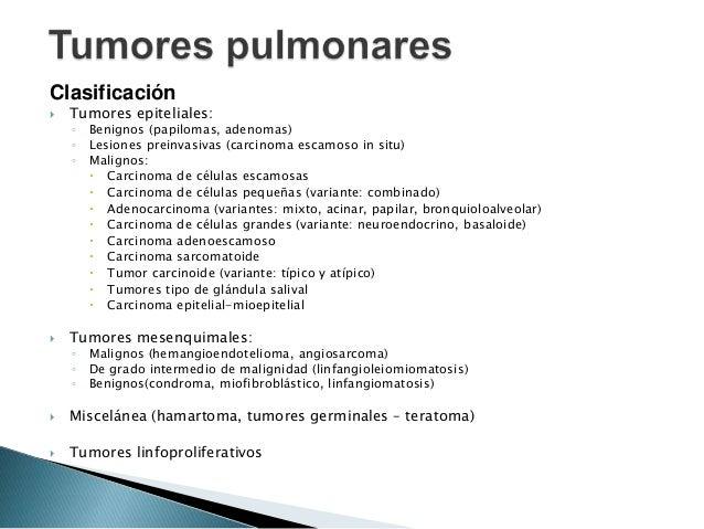 Anatomía Patológica de los Tumores Pulmonares Slide 2