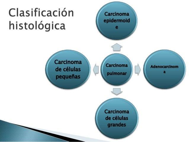 Anatomía Patológica de los Tumores Pulmonares Slide 4