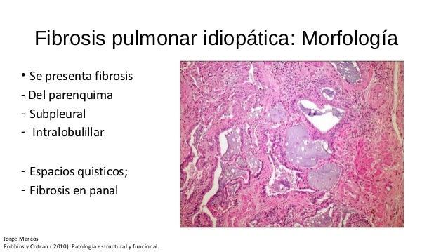 Doença pulmonar obstrutiva crônica ppt carregar.
