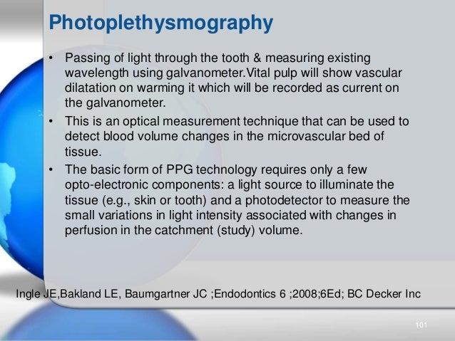 Photoplethysmography • Passing of light through the tooth & measuring existing wavelength using galvanometer.Vital pulp wi...