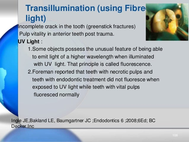 Transillumination (using Fibreoptic light) Incomplete crack in the tooth (greenstick fractures) Pulp vitality in anterior ...
