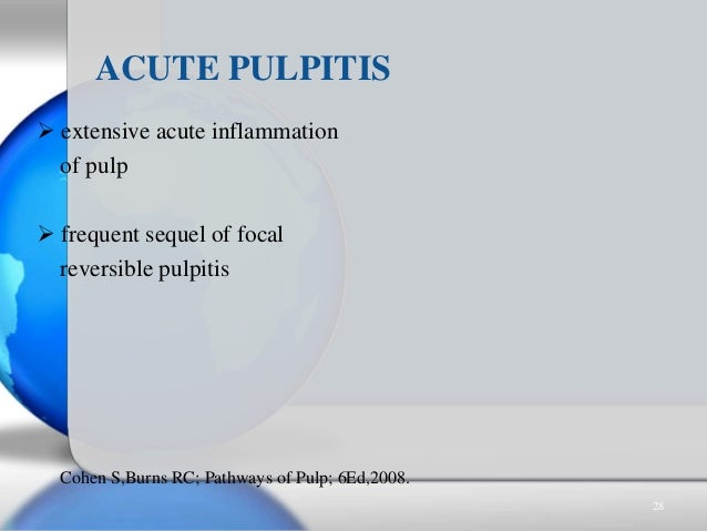  extensive acute inflammation of pulp  frequent sequel of focal reversible pulpitis ACUTE PULPITIS Cohen S,Burns RC; Pat...