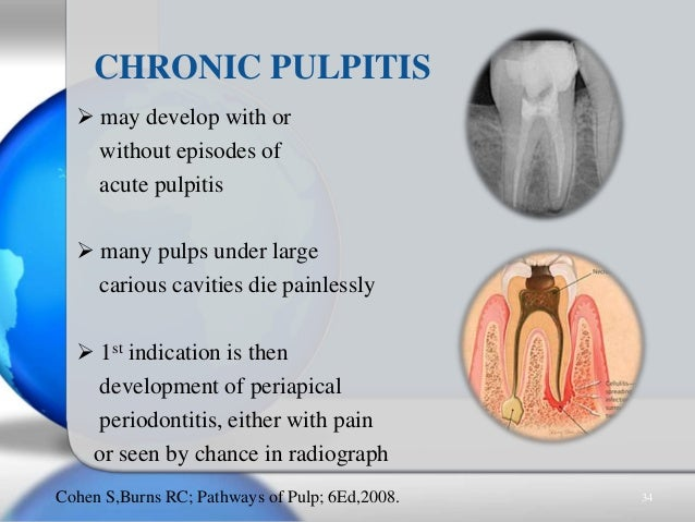  may develop with or without episodes of acute pulpitis  many pulps under large carious cavities die painlessly  1st in...
