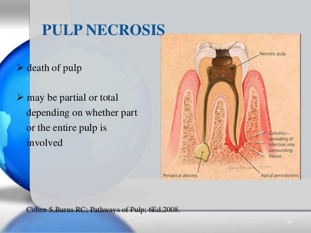  death of pulp  may be partial or total depending on whether part or the entire pulp is involved PULP NECROSIS Cohen S,B...