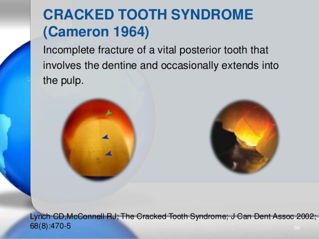 Incomplete fracture of a vital posterior tooth that involves the dentine and occasionally extends into the pulp. CRACKED T...