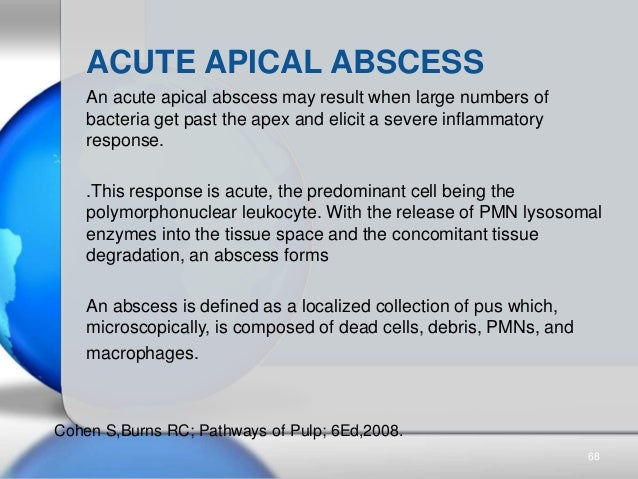 An acute apical abscess may result when large numbers of bacteria get past the apex and elicit a severe inflammatory respo...