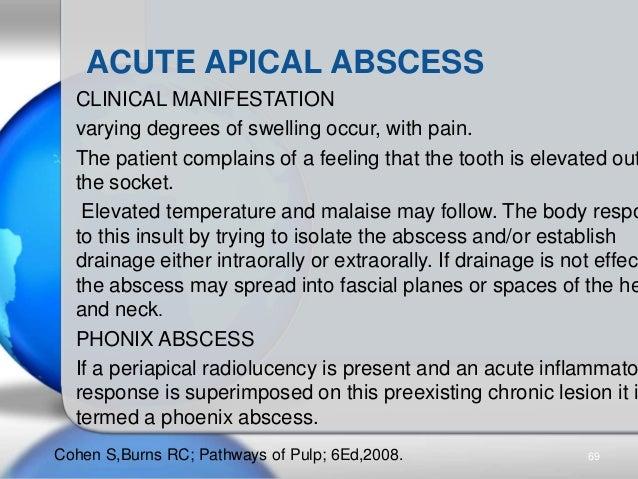 pulpal diseases