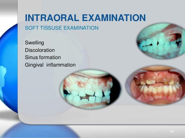 INTRAORAL EXAMINATION SOFT TISSUSE EXAMINATION Swelling Discoloration Sinus formation Gingival inflammation 83