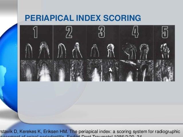 PERIAPICAL INDEX SCORING rstavik D, Kerekes K, Eriksen HM. The periapical index: a scoring system for radiographic96