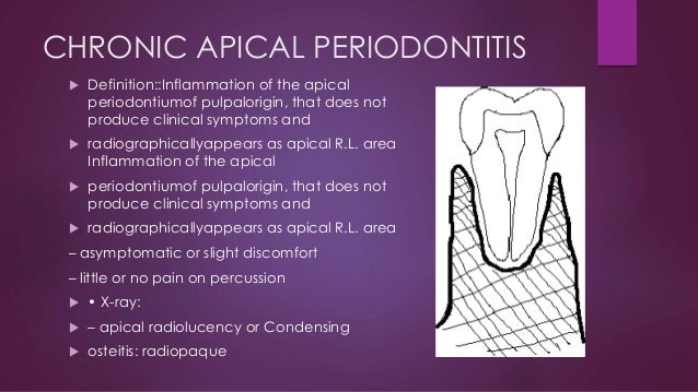 Standards for reporting chronic periodontitis prevalence ...