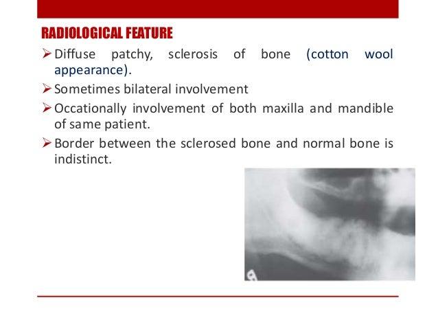 CHRONIC OSTEOMYELITIS WITH PROLIFERATIVE PERIOSTITIS (Garre's chronic nonsuppurative sclerosing osteitis ,periostitis ossi...