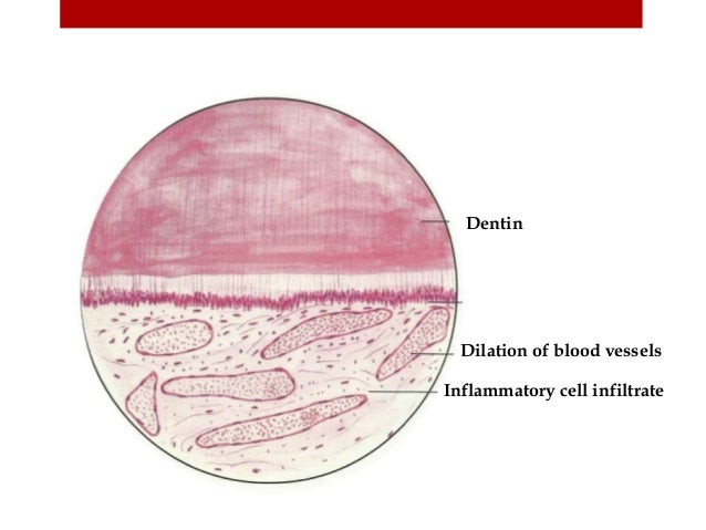 Dilation of blood vessels Inflammatory cell infiltrate Dentin