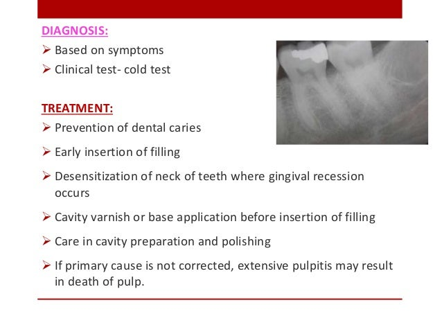DIAGNOSIS:  Based on symptoms  Clinical test- cold test TREATMENT:  Prevention of dental caries  Early insertion of fi...