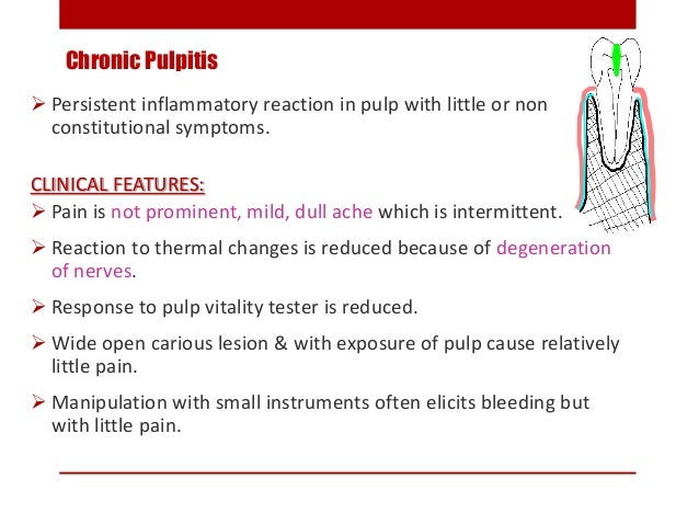 Chronic Pulpitis  Persistent inflammatory reaction in pulp with little or non constitutional symptoms. CLINICAL FEATURES:...