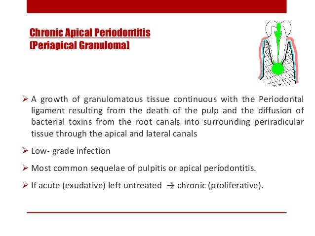 CLINICAL FEATURES:  Tooth involved is non vital / slightly tender on percussion.  Percussion may produce dull sound inst...