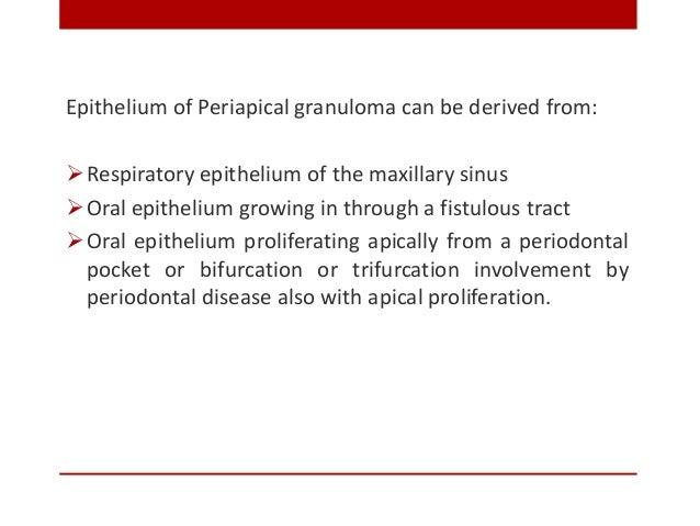 Periapical Abscess (Dento-Alveolar abscess, Alveolar Abscess) Periapical abscess is an acute or chronic suppurative proce...