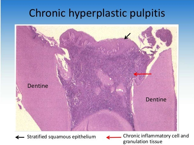 chronic hyperplastic pulpitis histology wwwpixsharkcom