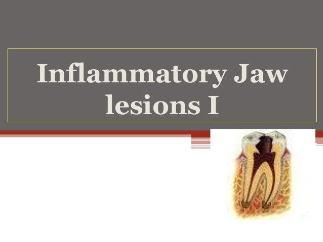 Inflammatory Jaw lesions I