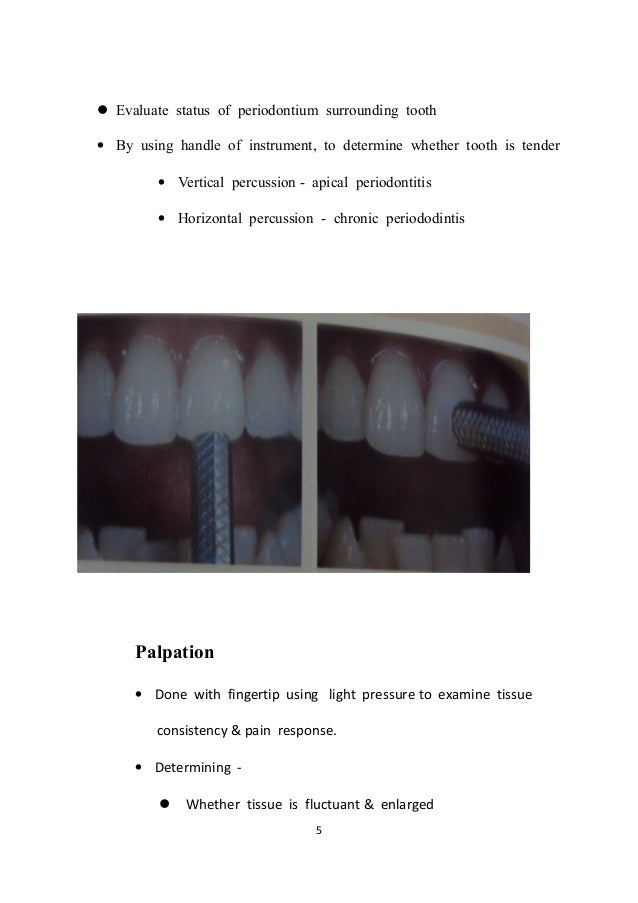 seminar on pulp vitality test